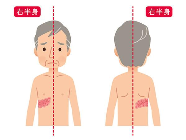 イラスト:帯状疱疹にかかった男性