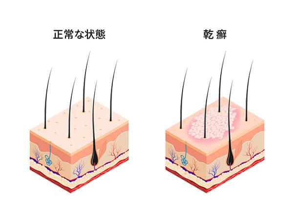 図解:正常な状態と乾癬