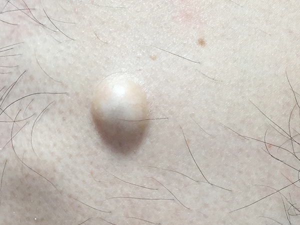 画像:粉瘤その2